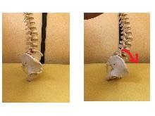 ㊧骨盤がまっすぐ立っている写真 ㊨骨盤が前傾している写真